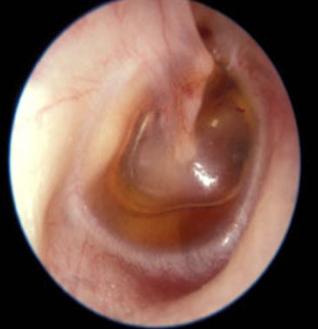 中耳炎要如何选配助听器